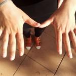 Psoriasis Hände nachher