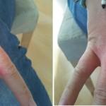 Psoriasis Hände vorher